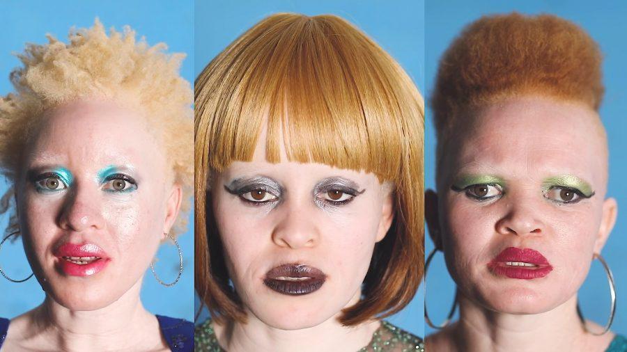 Albino month September