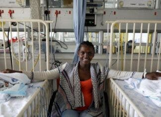 conjoined twins separated Cape Town South Africa